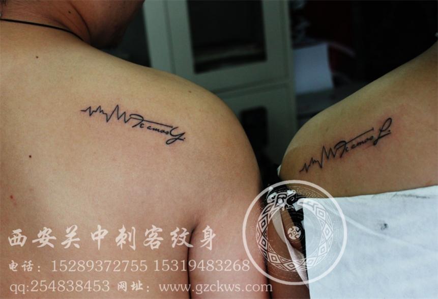 西安洗纹身医院分享展示